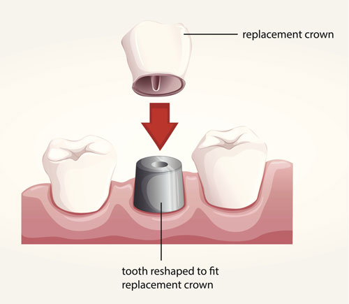 A diagram of how a dental crown works.