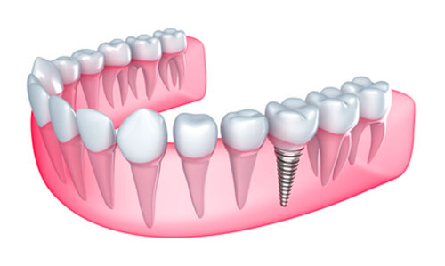 Important Facts About Dental Implants
