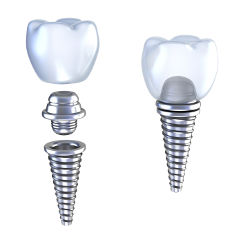 Does Caring for Natural Teeth While Having Implants Change Your Routine?