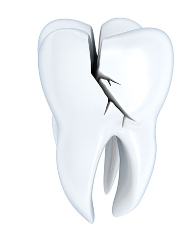 :Using Ice and Other Tools to Reduce Pain from a Broken Tooth Until We Can See You?