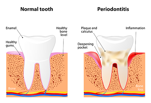 Periodontitis Diagram from Cooley Smiles