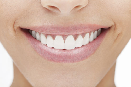 Woman smilimg and showing off her Porcelain Veneers from Cooley Smiles