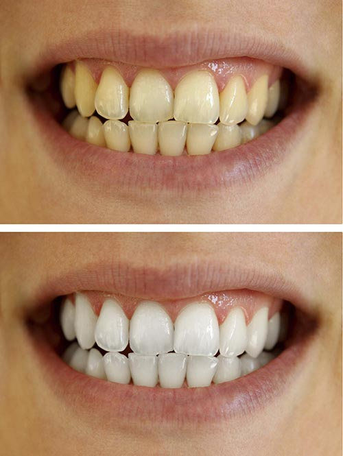 A before and after picture of a patient's teeth using a teeth whitening kit.