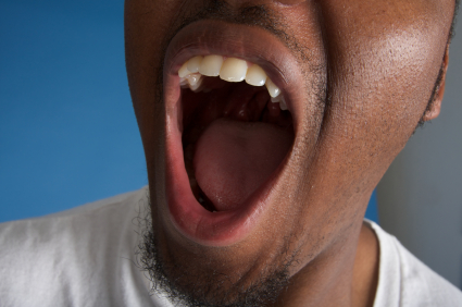 Untreated Dry Mouth Can Cost You Your Oral Health
